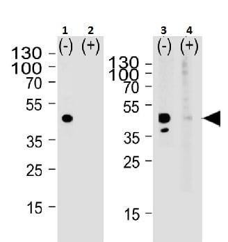 Western blot - Anti-Calcitonin receptor/CT-R antibody (ab230500)