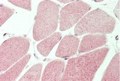 Immunohistochemistry (Formalin/PFA-fixed paraffin-embedded sections) - Anti-MT-ND5 antibody (ab230509)