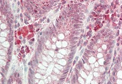 Immunohistochemistry (Formalin/PFA-fixed paraffin-embedded sections) - Anti-HOXA1 antibody (ab230513)