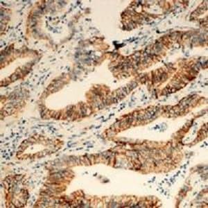 Immunohistochemistry (Formalin/PFA-fixed paraffin-embedded sections) - Anti-TUSC3 antibody (ab230520)