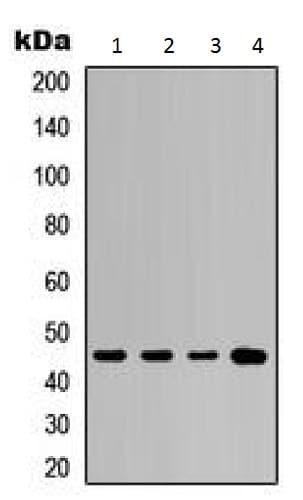 Western blot - Anti-Cytokeratin 20 antibody - C-terminal (ab230524)