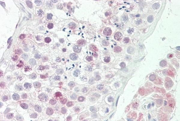 Immunohistochemistry (Formalin/PFA-fixed paraffin-embedded sections) - Anti-D4S234E antibody (ab230530)