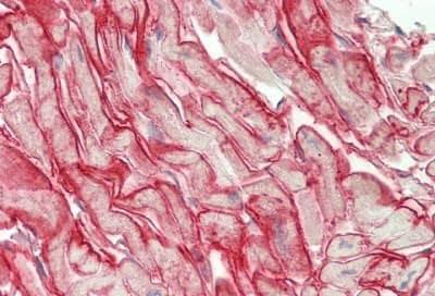Immunohistochemistry (Formalin/PFA-fixed paraffin-embedded sections) - Anti-Connexin 43 / GJA1 antibody (ab230537)