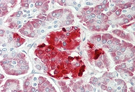 Immunohistochemistry (Formalin/PFA-fixed paraffin-embedded sections) - Anti-ERO1LB antibody - C-terminal (ab230540)