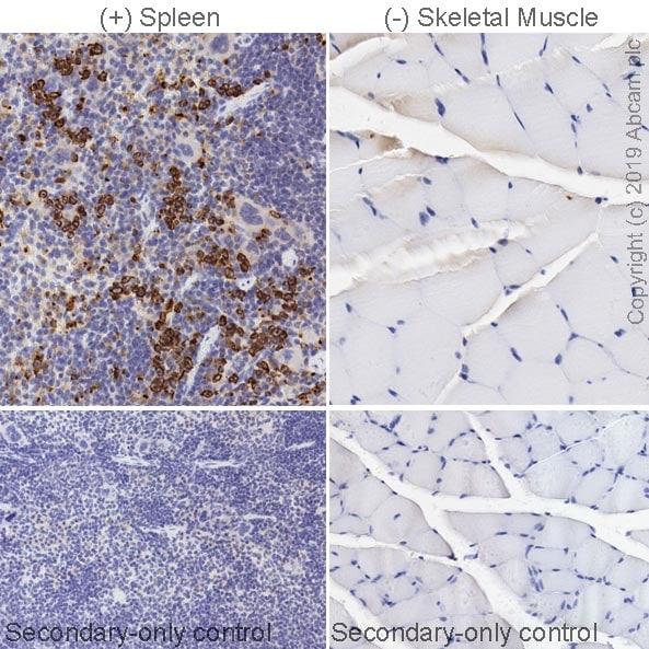 Immunohistochemistry (Formalin/PFA-fixed paraffin-embedded sections) - Anti-Chitinase 3 like protein 3 antibody [EPR21248] (ab230610)