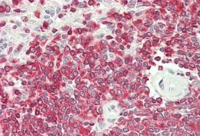 Immunohistochemistry (Formalin/PFA-fixed paraffin-embedded sections) - Anti-CLK4 antibody (ab230632)