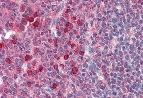 Immunohistochemistry (Formalin/PFA-fixed paraffin-embedded sections) - Anti-rSec6 antibody [9H5] (ab230633)