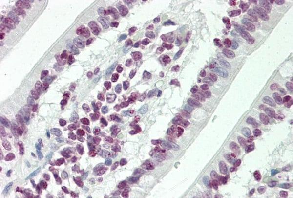 Immunohistochemistry (Formalin/PFA-fixed paraffin-embedded sections) - Anti-HOXC4 antibody (ab230639)