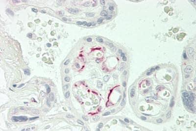 Immunohistochemistry (Formalin/PFA-fixed paraffin-embedded sections) - Anti-CACNA1E antibody (ab230640)