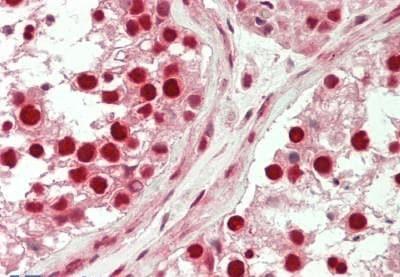 Immunohistochemistry (Formalin/PFA-fixed paraffin-embedded sections) - Anti-TESK2 antibody (ab230644)