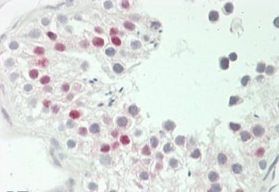 Immunohistochemistry (Formalin/PFA-fixed paraffin-embedded sections) - Anti-GADD45B antibody - C-terminal (ab230646)