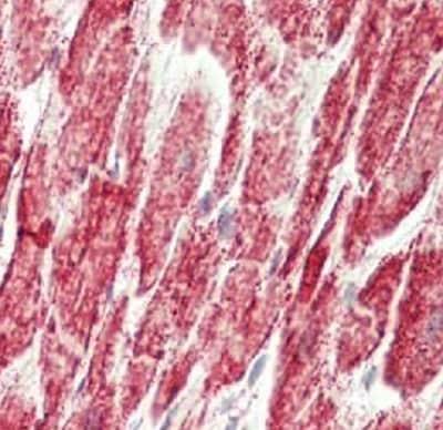 Immunohistochemistry (Formalin/PFA-fixed paraffin-embedded sections) - Anti-HADHB antibody (ab230667)
