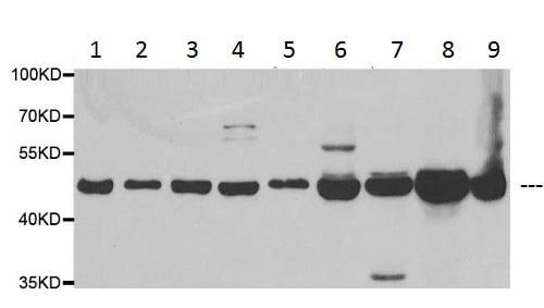 Western blot - Anti-HADHB antibody (ab230667)