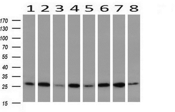 Western blot - Anti-GBAS antibody [1B8] (ab230672)