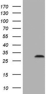 Western blot - Anti-C3orf43 antibody [1H6] (ab230681)
