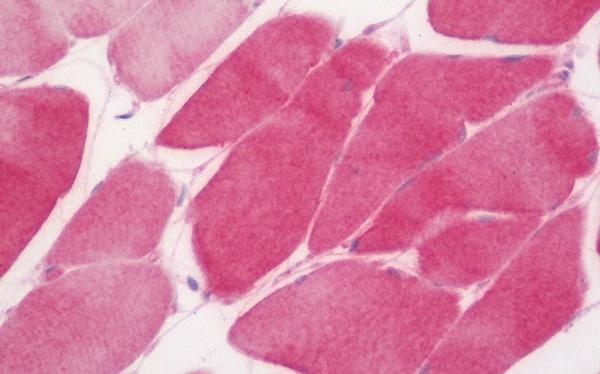 Immunohistochemistry (Formalin/PFA-fixed paraffin-embedded sections) - Anti-C3orf43 antibody [1H6] (ab230681)