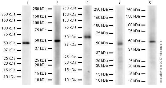 Western blot - Anti-GSDMA antibody [EPR19858-104] (ab230768)
