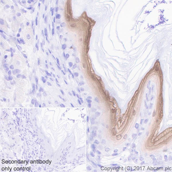 Immunohistochemistry (Formalin/PFA-fixed paraffin-embedded sections) - Anti-GSDMA antibody [EPR19858-104] (ab230768)