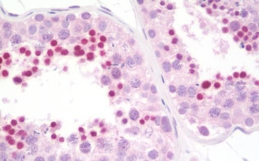 Immunohistochemistry (Formalin/PFA-fixed paraffin-embedded sections) - Anti-BRCA1 antibody (ab230782)
