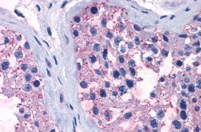 Immunohistochemistry (Formalin/PFA-fixed paraffin-embedded sections) - Anti-TR1 antibody (ab230788)