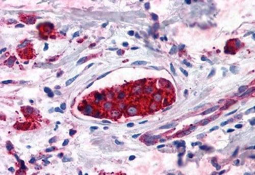 Immunohistochemistry (Formalin/PFA-fixed paraffin-embedded sections) - Anti-Cannabinoid Receptor II antibody (ab230791)