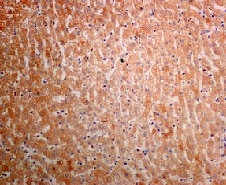Immunohistochemistry (Formalin/PFA-fixed paraffin-embedded sections) - Anti-AGL/Alpha-glucosidase antibody [EPR8880] - BSA and Azide free (ab230798)