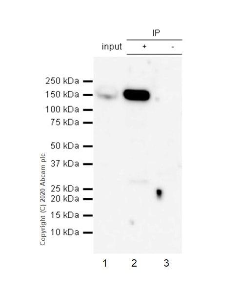 Immunoprecipitation - Anti-ROCK1 antibody [EPR638Y] - BSA and Azide free (ab230799)