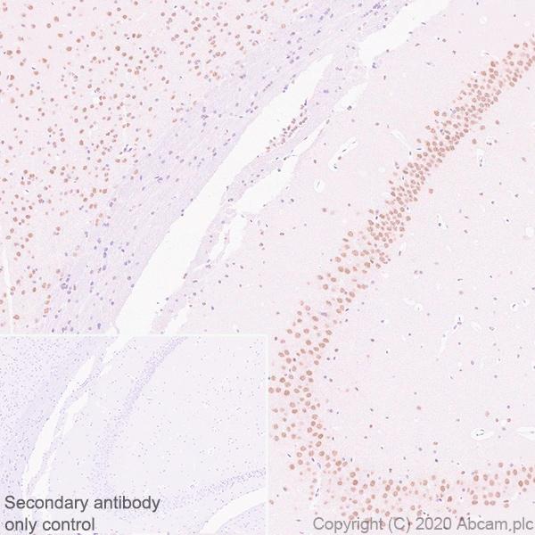 Immunohistochemistry (Formalin/PFA-fixed paraffin-embedded sections) - Anti-BMAL1 antibody [EPR23696-22] (ab230822)