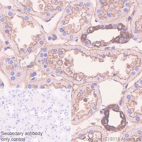 Immunohistochemistry (Formalin/PFA-fixed paraffin-embedded sections) - Anti-non-muscle Myosin IIB/MYH10 antibody [EPR22564-23] (ab230823)