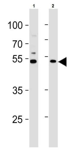 Western blot - Anti-C1GALT1 antibody (ab230837)