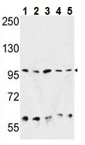 Western blot - Anti-GRP94 antibody (ab230842)