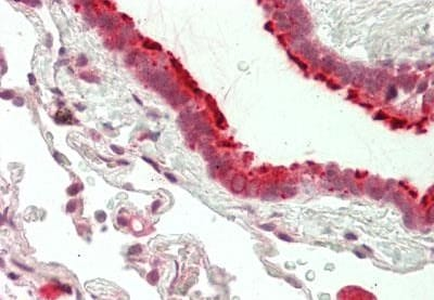 Immunohistochemistry (Formalin/PFA-fixed paraffin-embedded sections) - Anti-SLC16A11 antibody (ab230845)