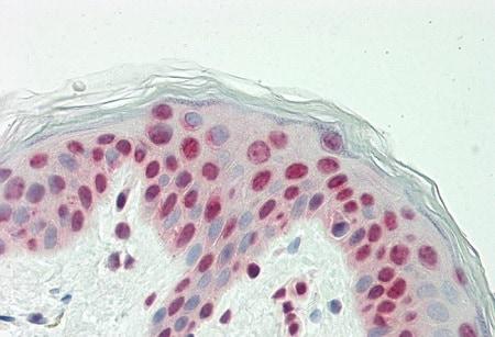Immunohistochemistry (Formalin/PFA-fixed paraffin-embedded sections) - Anti-Raf1 antibody (ab230850)