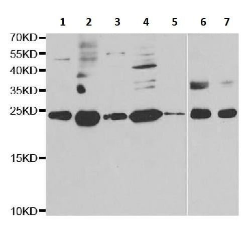 Western blot - Anti-RPS7 antibody (ab230862)
