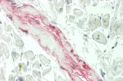 Immunohistochemistry (Formalin/PFA-fixed paraffin-embedded sections) - Anti-ADAMTS10 antibody (ab230902)