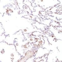 Immunohistochemistry (Formalin/PFA-fixed paraffin-embedded sections) - Anti-CD14 antibody [SP192] - BSA and Azide free (ab230903)