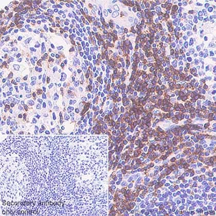 Immunohistochemistry (Formalin/PFA-fixed paraffin-embedded sections) - Anti-CD7 antibody [SP94] - BSA and Azide free (ab230904)