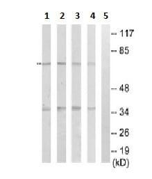 Western blot - Anti-NEIL3 antibody (ab230908)