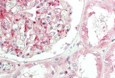Immunohistochemistry (Formalin/PFA-fixed paraffin-embedded sections) - Anti-Cortactin antibody (ab230910)