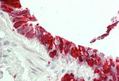Immunohistochemistry (Formalin/PFA-fixed paraffin-embedded sections) - Anti-15 Lipoxygenase 1 antibody [7H6] (ab230919)