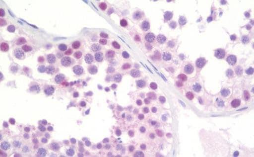 Immunohistochemistry (Formalin/PFA-fixed paraffin-embedded sections) - Anti-HTF9C/TRMT2A antibody [1G8] (ab230922)