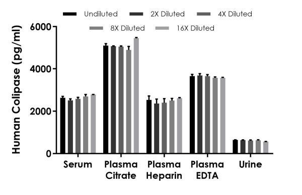 Interpolated concentrations of native Colipase in human serum, plasma, and urine samples