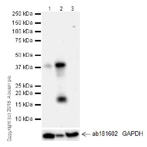 Western blot - Anti-CYR61/CCN1 antibody [EPR20681] (ab230947)