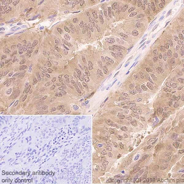 Immunohistochemistry (Formalin/PFA-fixed paraffin-embedded sections) - Anti-IDH1 antibody [EPR21002] (ab230949)