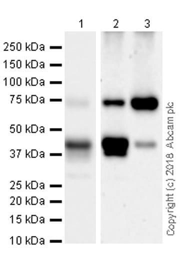Western blot - Anti-PKC theta/PRKCQ antibody [EPR22277] (ab230971)