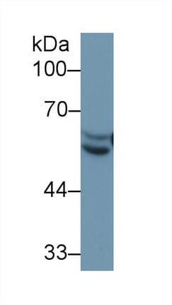 Western blot - Anti-Antithrombin III/ATIII antibody (ab230981)