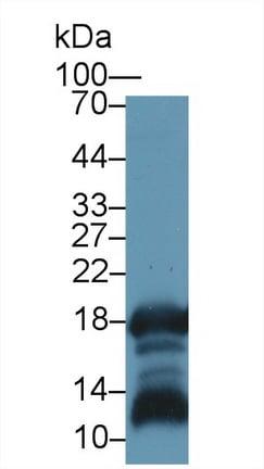 Western blot - Anti-Gastrokine 1 antibody (ab230990)