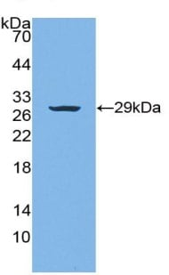 Western blot - Anti-Warp antibody (ab230991)