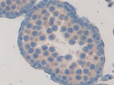 Immunohistochemistry (Formalin/PFA-fixed paraffin-embedded sections) - Anti-Fibulin 1 antibody (ab230994)