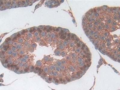 Immunohistochemistry (Formalin/PFA-fixed paraffin-embedded sections) - Anti-Haptoglobin antibody (ab231000)